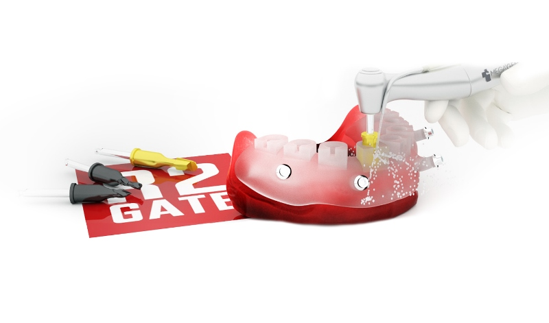 implantologie dentara R2gate