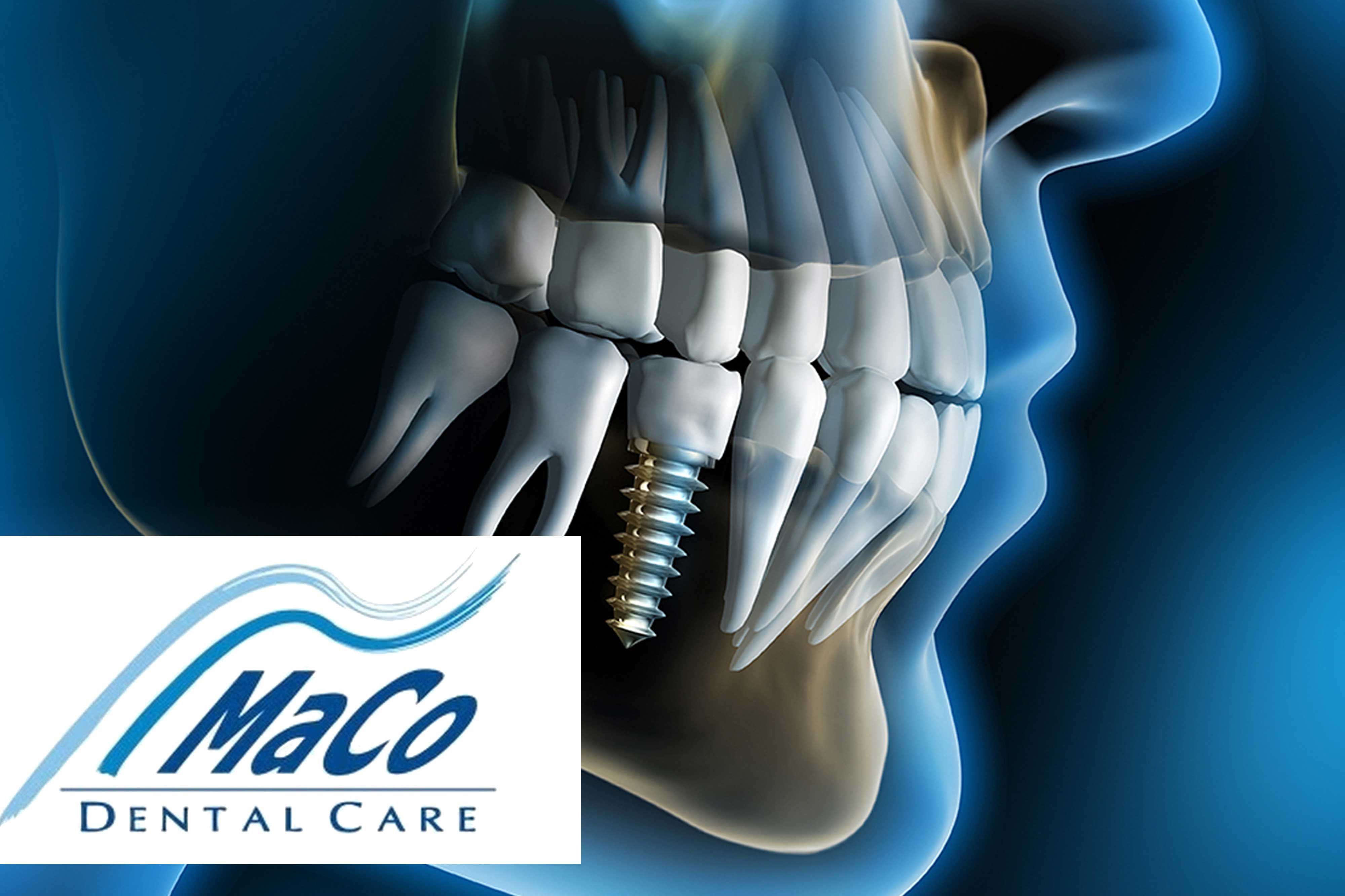 Oferta implant Maco Dental Care