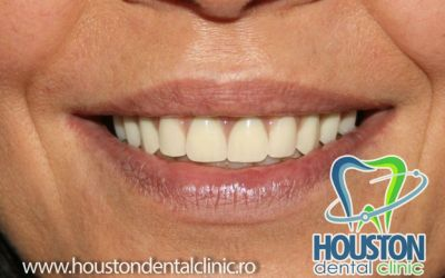 implantologie dentara